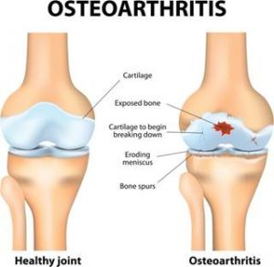 osteoarthritis ayurveda treatment in cochin